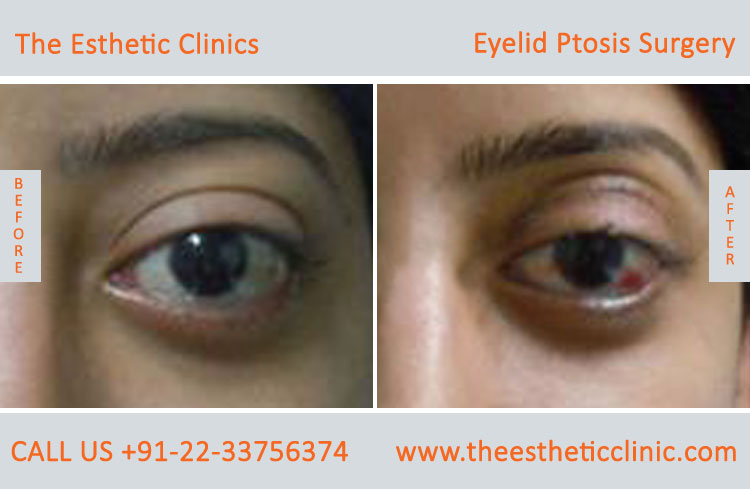 Ptosis Surgery, Drooping Eyelid Treatment before after photos in mumbai india (2)
