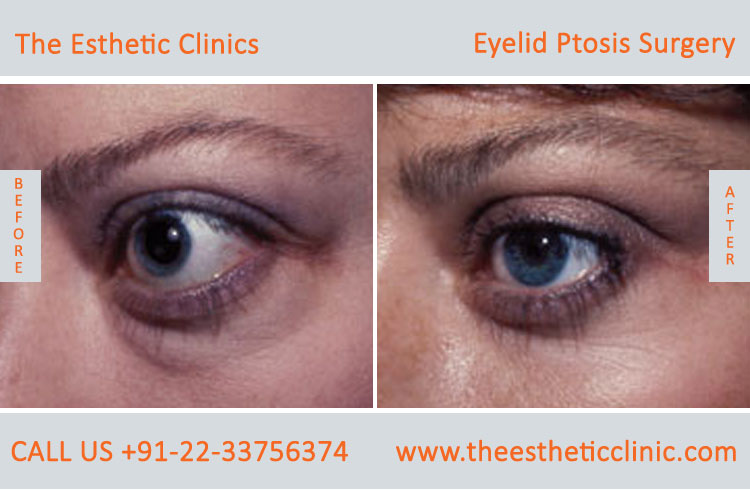 Ptosis Surgery, Drooping Eyelid Treatment before after photos in mumbai india (4)