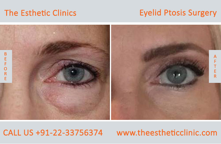 Ptosis Surgery, Drooping Eyelid Treatment before after photos in mumbai india (5)
