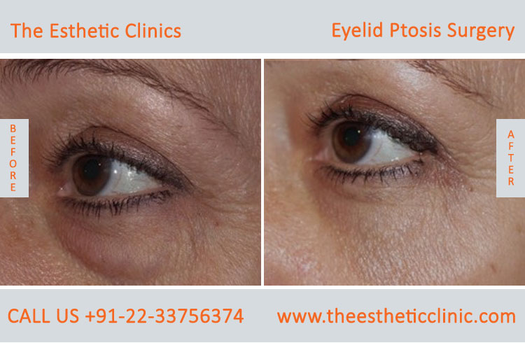 Ptosis Surgery, Drooping Eyelid Treatment before after photos in mumbai india (6)