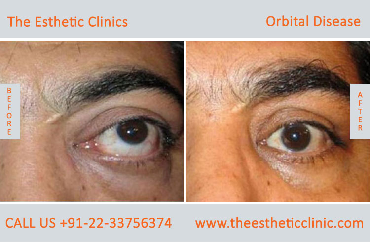 Thyroid Eye Disease Treatment Graves Eye Disease Surgery Cost