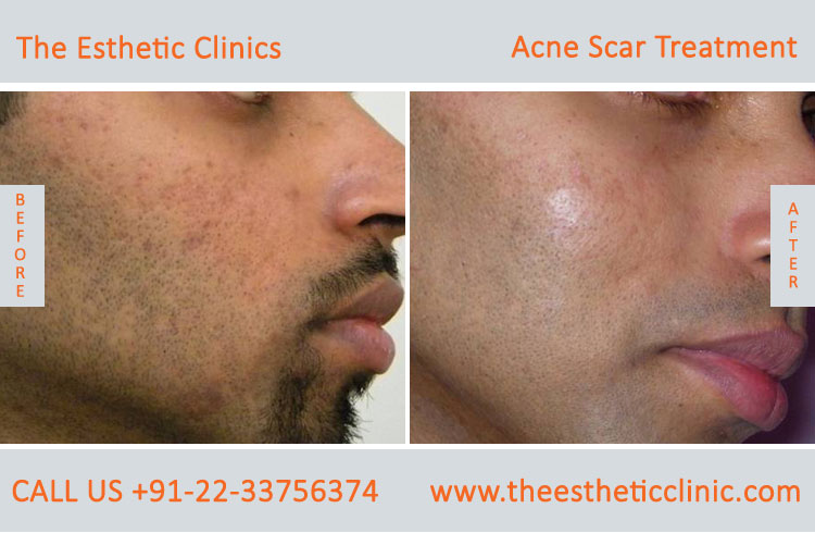Acne Treatment Mumbai Pimples Acne Scars Clinics Cost India The Esthetic Clinics