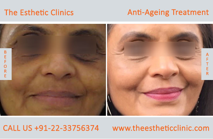 Anti Aging Treatment Mumbai Wrinkles Treatment Cost India The
