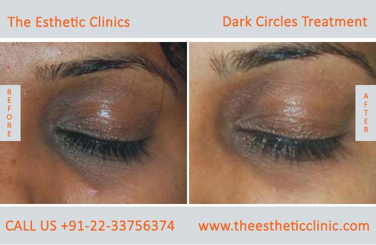Dark Circle Treatment Mumbai Under Eye Dark Circle Removal Cost