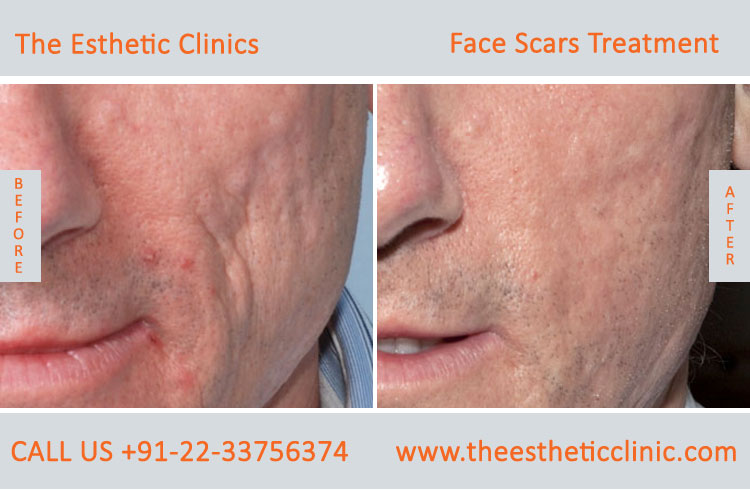 Laser treatment for facial scars — photo 10