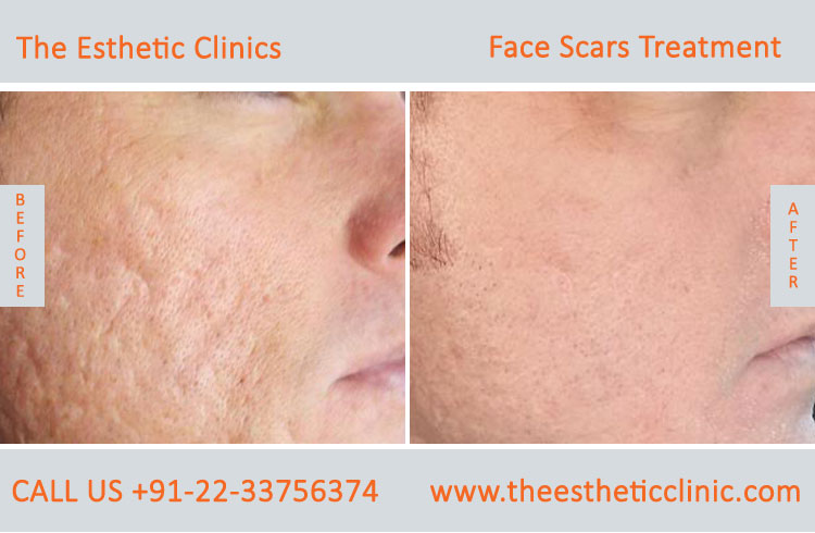 Face Scar Removal Mumbai Laser Scar Reduction Treatment Cost India The Esthetic Clinics
