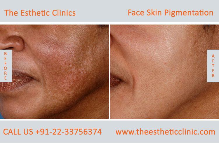 Face Skin Pigmentation Treatment, Skin Lightening Treatment