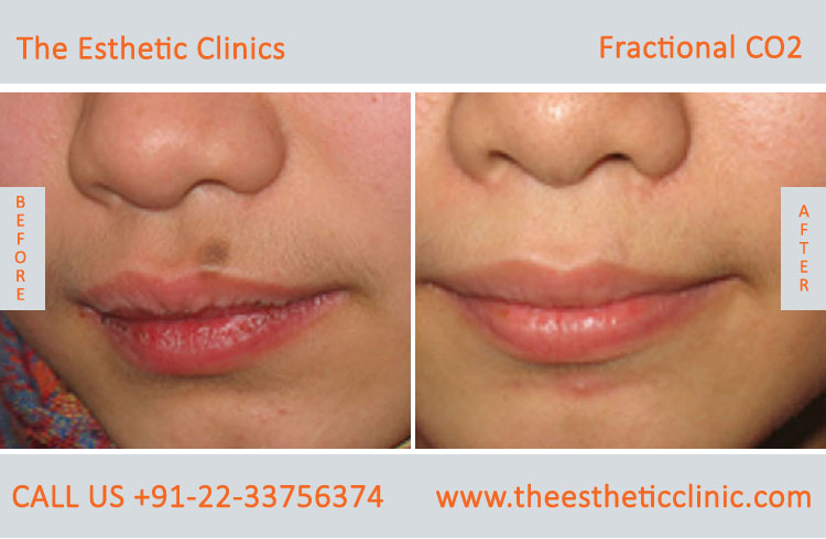 Fractional CO2 Laser Treatment, Skin Resurfacing Treatment
