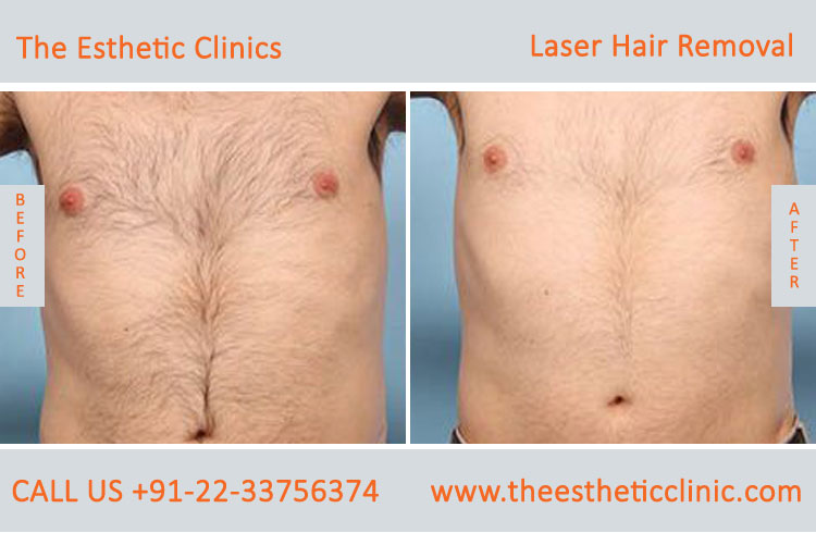 Laser Hair Removal Mumbai Permanent Hair Removal Treatment Cost India The Esthetic Clinics
